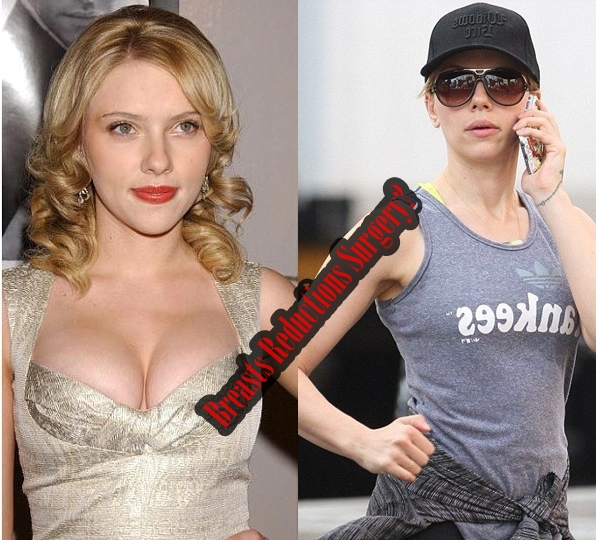 Scarlett Johansson Breasts Reductions Plastic Surgery Before And After Showcase
