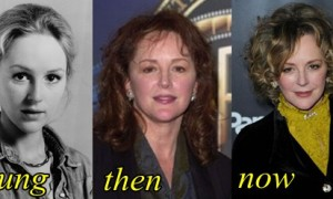 Bonnie Bedelia Plastic Surgery Before And After Photos