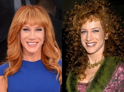 Kathy Griffin Nose Job Plastic Surgery Before And After Pictures