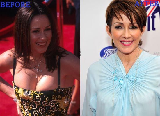 Patricia Heaton Breast Reduction Plastic Surgery Before And After