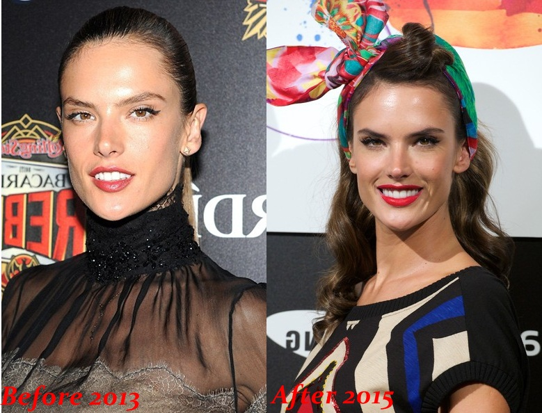 Alessandra Ambrosio plastic surgery before and after photos