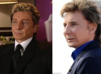 Barry Manilow facelift plastic surgery before and after pics, photos