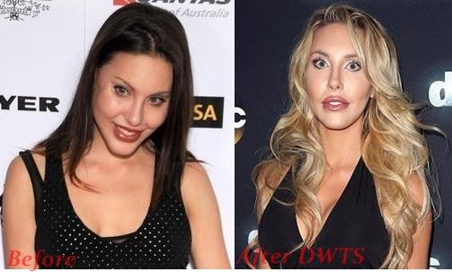 Chloe Lattanzi Plastic Surgery Before And After