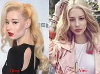 Iggy Azalea Nose Job Plastic Surgery Before And After Face