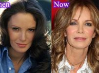 Jaclyn Smith Plastic Surgery Before And After Pictures