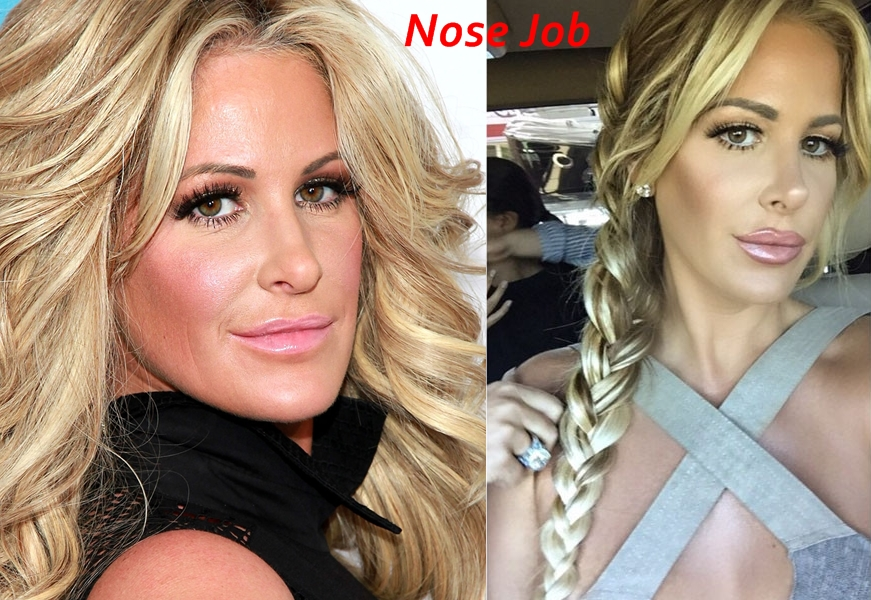 Kim Zolciak plastic surgery before and after instagram photos nose job