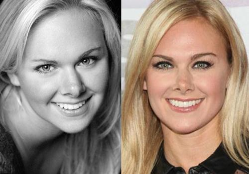 Laura Bell Bundy Nose Job Before And After Pictures