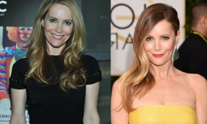 Leslie Mann Plastic Surgery Before And After Photos,