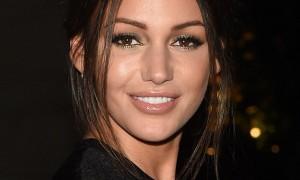 Michelle Keegan Botox, Lip Filler Plastic Surgery Rumors Reaction