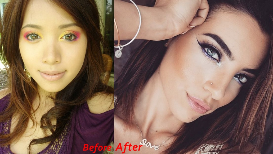 Michelle Phan Nose Job Before And After Photos