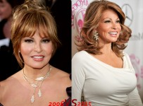 Raquel Welch Plastic Surgery Before And After Photos