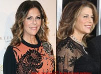 Rita Wilson Plastic Surgery Before And After Photos
