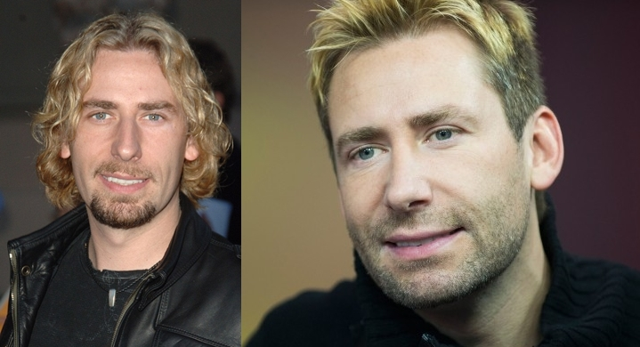 Chad Kroeger Plastic Surgery Before And After Nose Job