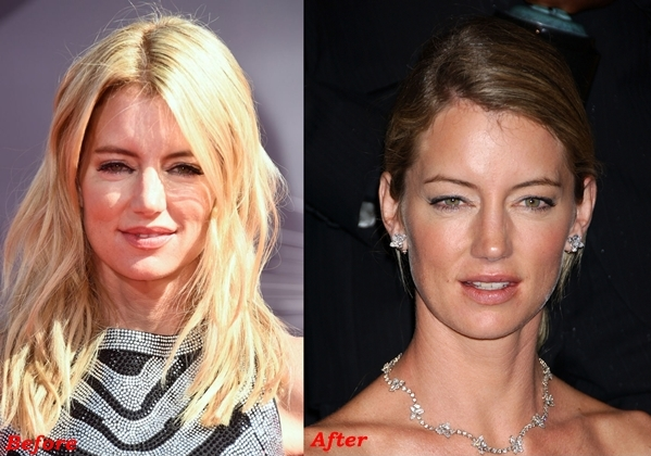 Cynthia Watros Plastic Surgery Before And After Face Photos 1