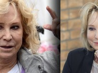 Felicity Kendal Plastic Surgery Before And After