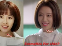 Hwang Jung Eum plastic surgery before and after photos