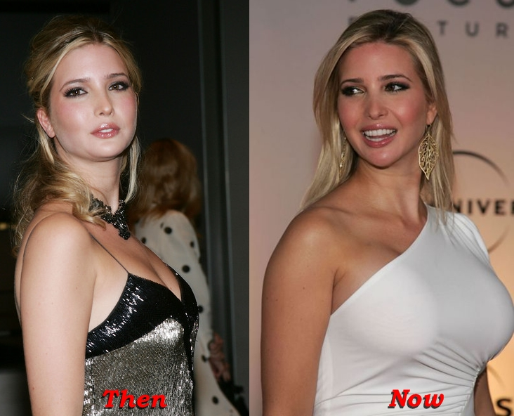 Ivanka Trump plastic surgery before and after photos breasts implants