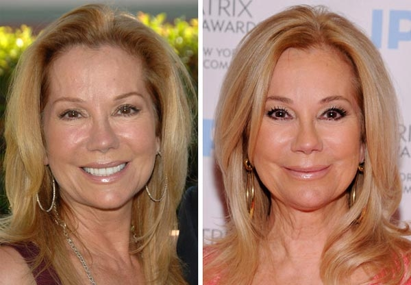 Kathie Lee Gifford Plastic Surgery Before And After Cosmetics 1