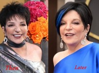 Liza Minnelli Plastic Surgery Before And After Photos
