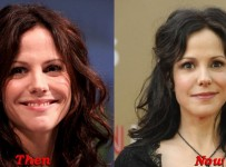 Mary Louise Parker Plastic Surgery Before And After Face Photos
