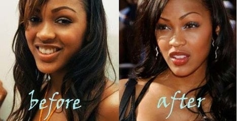 Meagan Good Nose Job