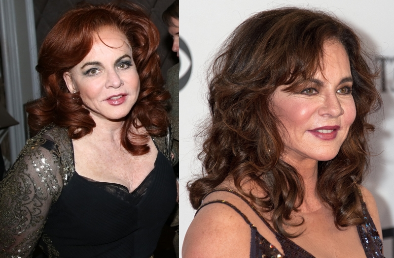 Stockard Channing Plastic Surgery Before And After Photos,