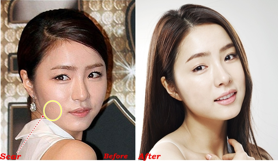 shin se kyung plastic surgery before and after rumor pictures