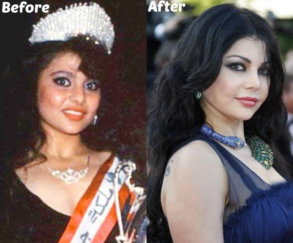 Haifa Wehbe Plastic Surgery Before And After Photo,