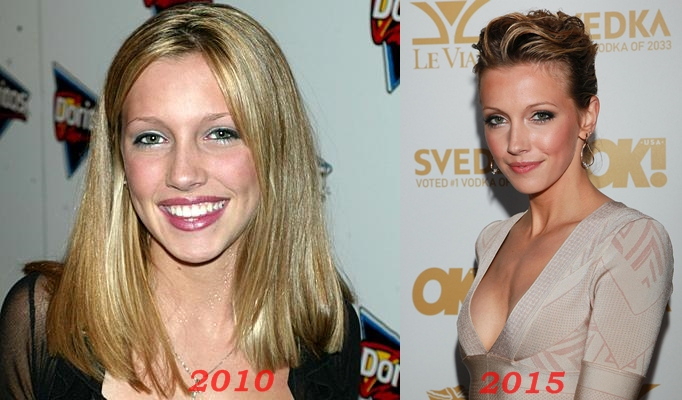 Katie Cassidy Plastic Surgery Before And After nose job