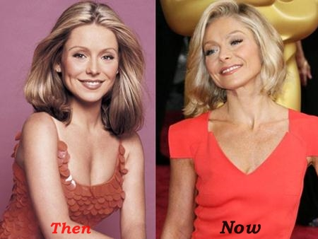Kelly Ripa Plastic Surgery Before And After Photos (2)