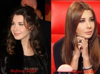 Nancy Ajram plastic surgery before and after photos