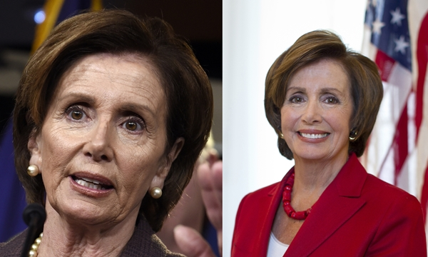 Nancy Pelosi Plastic Surgery Before And After