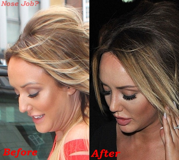 Charlotte Crosby nose job plastic surgery before and after photos