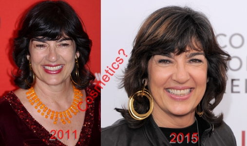 Christiane Amanpour Plastic Surgery Before And After Cosmetics
