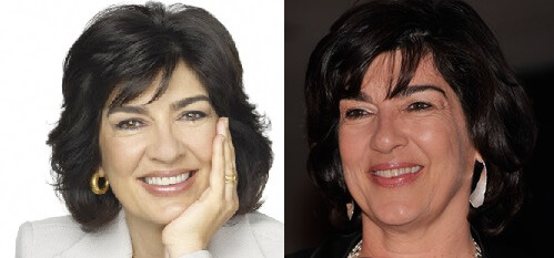 Christiane Amanpour Plastic Surgery Before And After Nose Job
