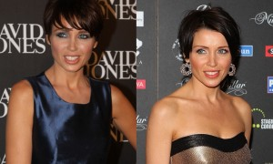 Dannii Minogue Plastic Surgery Before And After Botox Photos