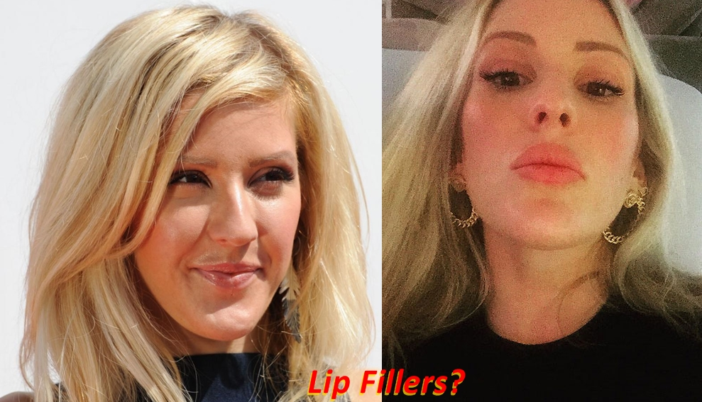 Ellie Goulding plastic surgery before and after Lip Fillers