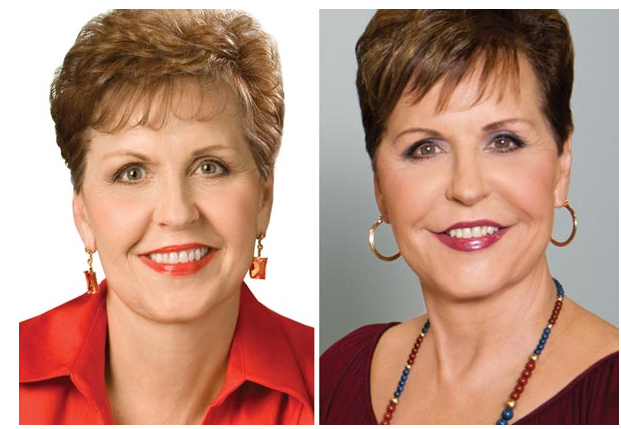 Joyce Meyer Plastic Surgery Before And After Photos