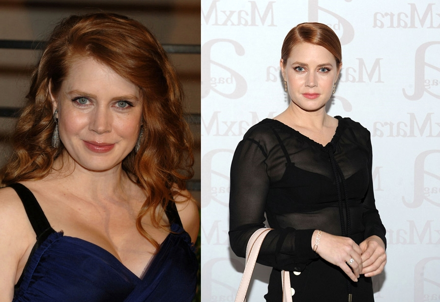 amy adams nose job before and after surgery photos