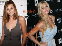 Aly Michalka Breast Implants Before And After Photos