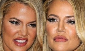 Khloe Kardashian Wrong Plastic Surgery Before And After Fillers Photos