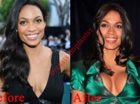 Rosario Dawson Breast Implants Plastic Surgery Before And After Boob Job
