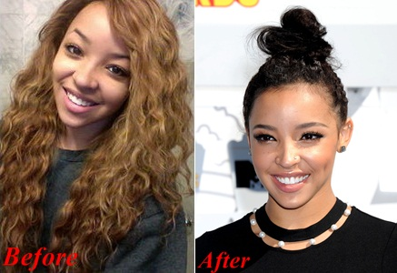 Tinashe Nose Job Plastic Surgery Before And After