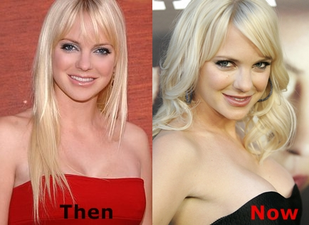 Did Anna Faris Had Breasts Implants Plastic Surgery Or Not