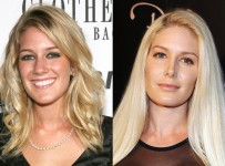 Heidi Montag Nose Job Plastic Surgery Before And After Rhinoplasty Photos