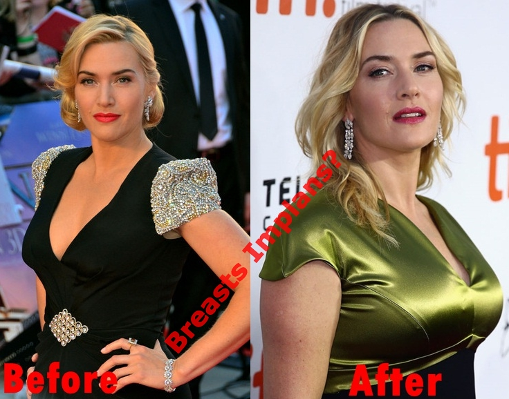 Kate Winslet plastic surgery before and after breasts implants photos