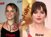 Did Dakota Johnson had nose job plastic surgery or not