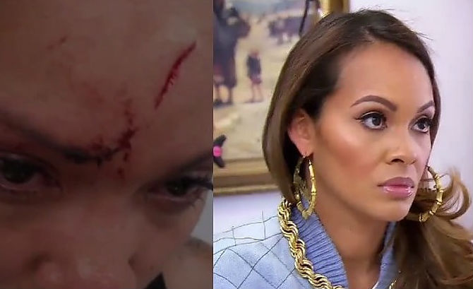Did Evelyn Lozada Get Plastic Surgery or Not