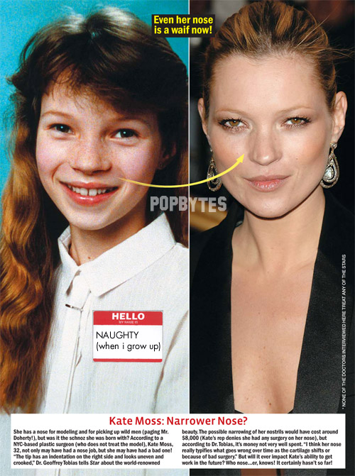 Did Kate Moss Had Nose Job Plastic Surgery Or Not,