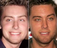 Did Lance Bass Had Nose Job Plastic Surgery Or Not